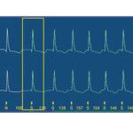 Pathfindersl - zapis Holter EKG -  Eskulap Premium